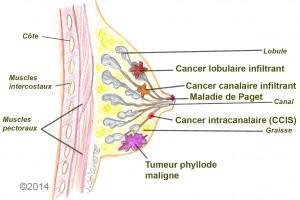 cancer du sein grade 2