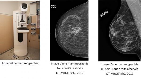mammographie de d pistage. Black Bedroom Furniture Sets. Home Design Ideas