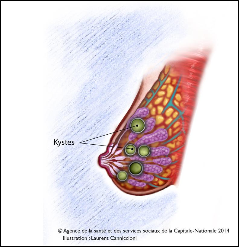 Maladie fibrokystique - depistageseinca