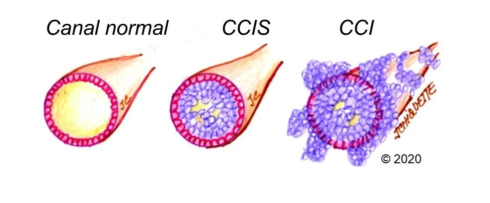 cluburi de corali medicamente antihelmintice hpv and bowel cancer